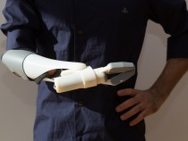 Prosthetic Arm Allows Man To Feel Sense Of Touch Once More