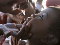 Killer Measles More Widespread Than Believed