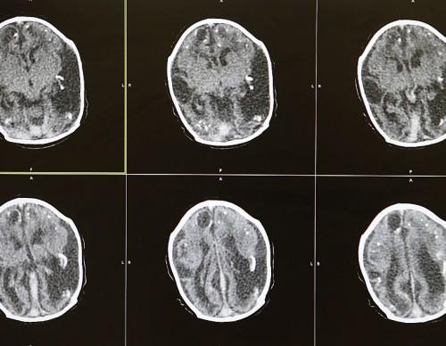 Trauma Affects Boys' And Girls' Brain Differently