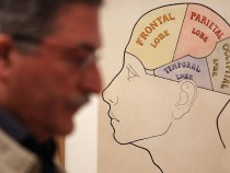 Dementia Rates In The U.S. Are Falling, Study Confirms