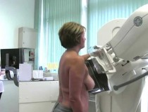 Every Woman Should Undergo Mammogram, Including 75-Year-Old And Above