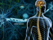 Multiple Sclerosis Graphic