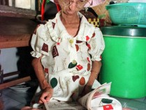 Progeria or Rapid Premature Aging