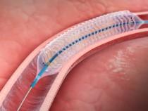 DESolve novolimus-eluting bioresorbable coronary scaffold system