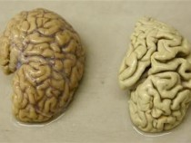 One hemisphere of a healthy brain (L) is pictured next to one hemisphere of a brain of a person suffering from Alzheimer disease, at the Morphological unit of psychopathology in the Neuropsychiatry division of the Belle Idee University Hospital in Chene-B