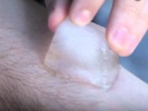 Salt And Ice' Challenge: Parents Are Warned Against This Internet Craze