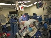 Kidney transplant surgery