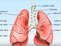 Cancer Miracle: Wonder Drug Gave Terminally Ill Lung Cancer Patient An All Clear