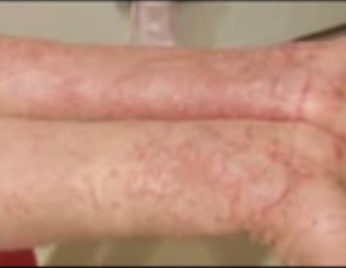 Eczema Cure: Elephant's Skin Sheds Light To Possible Treatment Of The Disease, Is This The Answer To Eczema?