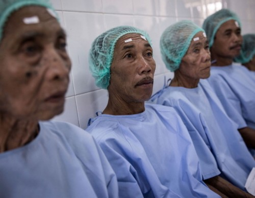 Cataract Patients Receive Free Treatment in Bali's Capital