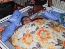 News Update: Heaviest Women in the World Underwent Successful Bariatric Surgery in India