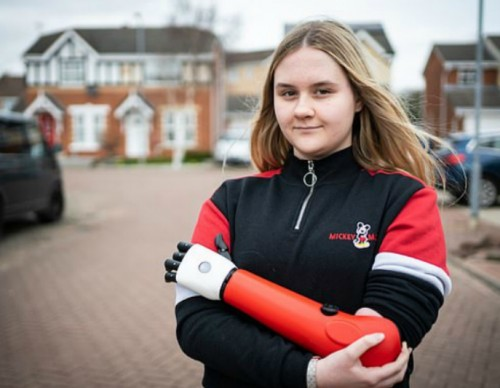 Aimee Ashton and her Bionic Arm