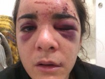 [Fake News] The Real Woman Behind the Viral Photo of 'Aracely Henriquez' Allegedly Assaulted by George Floyd Speaks Up