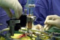 Brisbane, Australia - PHOTO TAKEN IN JUN02 - Australian scientists transplant regenerating nasal nerve cells into an unidentified paraplegic patient's spinal chord during an eight-hour operation at Brisbane's Princess Alexandra Hospital June 2002. A joint
