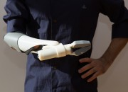 A hand that helps: Find out how a prosthetic arm allows a man to feel the sense of touch once more.