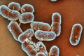Listeria Food Poisoning Leaves 1 Dead; 6 Others Hospitalized