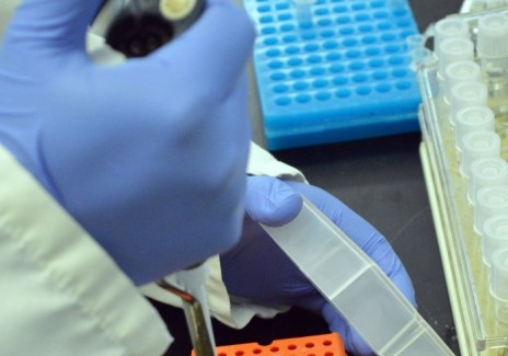 Researchers In Genetic Surgery At Temple University Develop Technique To Eliminate HIV In Human Cells