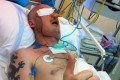 Fastest face-transplant surgery