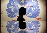 A newly developed imaging technique uses both EEG and fMRI technology to localize the origins of epileptic seizures.