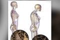 Osteoporosis Drug Brings New Hope To Breast Cancer Treatment