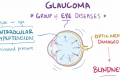Glaucoma (open-angle, closed-angle, and normal-tension) - pathology, diagnosis, treatment