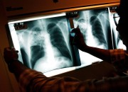 Researchers found new tuberculosis cure by utilizing proteins produced by parasites for host-directed tuberculosis therapies.