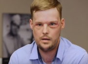 After shooting himself in the face because of deep depression, Andy Sandness gets a second chance in life after he becomes a face transplant patient sponsored by Mayo Clinic. He is ecstatic with his new look, and now feels more confident and able to get on with life.