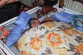 News Update: Heaviest Women in the World Underwent Successful Bariatric Surgery in India