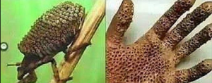"[Fact Check] The Viral ""New Killer Insect"" that Spreads a Deadly Skin-Altering Virus is in Fact False! There is No Such Thing as Trypophobia"